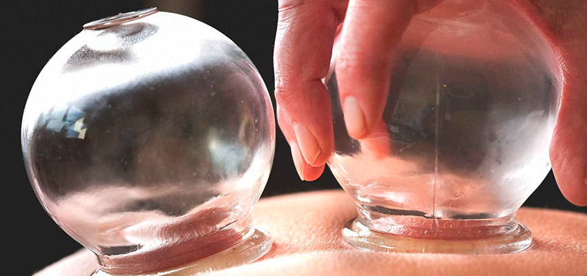 """Hijama Cupping Auricular Therapy Cosmetic Acupuncture"""